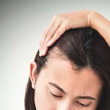 womans hair thinning on sides hair loss and testosterone