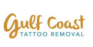 laser tattoo removal in gulfport mississippi astanza laser