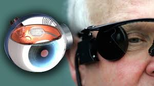 Technology For Blind People Bionic Eye Cures Blindness Youtube