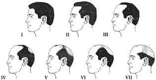 percentae of men with thinning hair at 60 hormones gr