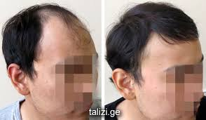 hairline restoration for black men hair transplant hairline design dr rahal s hairlines why are they