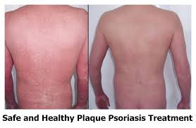 psoriasis treatment safe and healthy plaque psoriasis treatment dandruffly