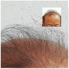 new hair growth discoveries at last a cure for baldness hairzym a new topical hair loss