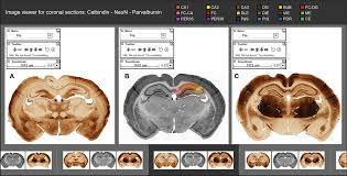 Anatomy Of Rat Brain Frontiers Digital Atlas Of Anatomical Subdivisions And