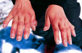 numbness paleness redness or cyanosis in fingertips ehealthstar