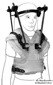 Brace Meme - this scoliosis back brace model looks like the feels meme funny