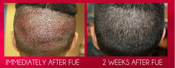 hair plugs for men hair transplant surgery for men the idle man