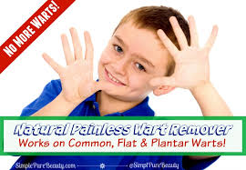 How To Remove Planters Warts by Natural Painless Wart Removal Safe For Kids And Flat Warts On