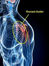 Tos Cincinnati Oh Thoracic Outlet Syndrome Tos