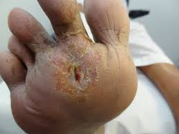 chiropody treatments leicester chiropody in leicester h2toe