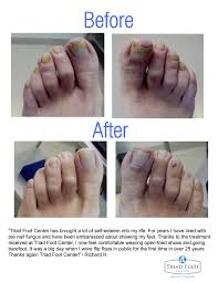 q clear laser treatment for toenail fungus works before after
