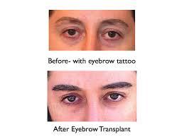 eyebrow hair loss archives hair transplant los angeles eyebrow