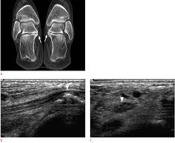 Talar Coalition Ultrasonography Of The Ankle Joint