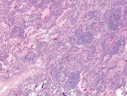 pathology outlines interstitial pneumonia with autoimmune features