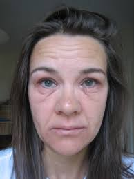 Red Flaky Skin Around Nose And Eyebrows Feel The Eczema And Do It Anyway Talkhealth Blog