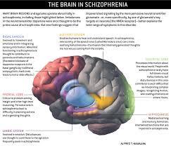Most Comfortable Bra In The World Schizophrenia