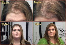 hair styles for trichotellamania hair regrowth after trichotillomania hairstyle ideas