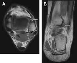 Anterior Distal Tibiofibular Ligament Lateral Ligaments Stress Fractures 78 Steps Health Journal