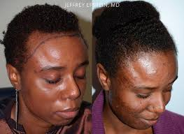 hair transplant for black women hair transplants for women photos hair restoration miami fl