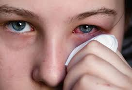 what causes eyes to be sensitive to light pinkeye conjunctivitis in pictures types treatments and more