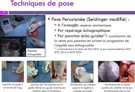 chambre à cathéter implantable charmant pose d une chambre implantable 6 chambre a