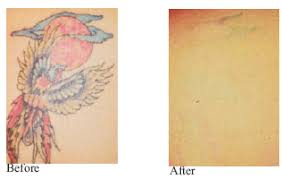 laser tattoo removal in orange county southern california