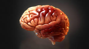 3d Head Anatomy 3 Strategic Visuals Every Tbi Case Needs High Impact News