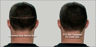 neograft recovery timeline hair transplant surgery in denver co neograft fue hair transplant