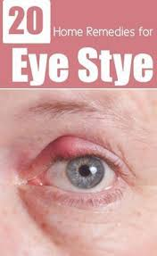 24 natural ways to improve your eyesight remedies natural