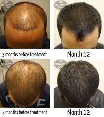 pubic hair gallery of pubic hair color change dagpress com