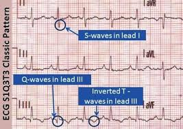 strain pattern ecg meaning s1q3t3 pulmonary embolism ecg ekg classic pattern medical billing