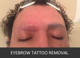 eyebrow tattoo removal tattoo removal experts london