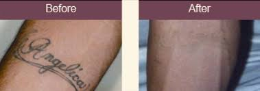 tattoo removal laser bay area laser removal of tattoos san jose ca