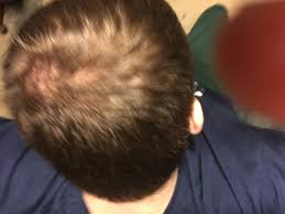 bald spot hair style latest men haircuts