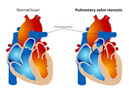 most common valve abnormality in peds cath rcis pinterest