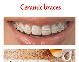 types and prices braces types of braces wonderful braces for teeth price what