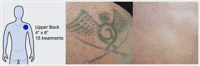 laser tattoo removal before and after pictures tribal eagle on upper back png