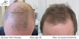 low level light therapy hair laser hair therapy for hair regrowth for thinning hair jk hair