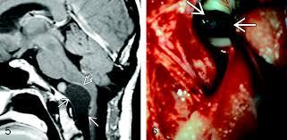 Brainstem Mass Intracranial Neurenteric Cysts Imaging And Pathology Spectrum