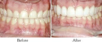 Comfort Dental Mesa Arizona Dentist Mesa Holistic Dentistry Mesa Az Teeth Whitening Mesa