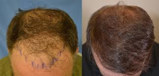 short hairstyles for 48 year old case study 1500 fut hair transplant hair restoration of the south