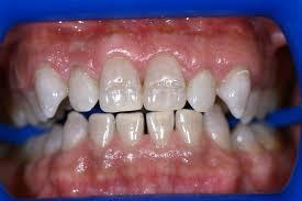 winnipeg zoom teeth whitening windsor park dental cosmetic