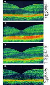 osa ultrahigh resolution high speed fourier domain optical