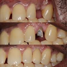 stephen alfano dds balboa island dentistry 14 photos u0026 14