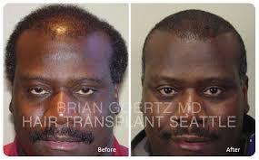 hairline restoration for black men african american hair transplants hair transplant seattle