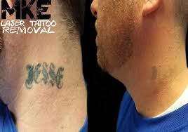 mke tattoo removal home facebook
