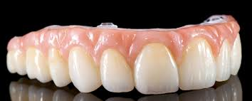Bridge Dental Cost Estimate by All On 4 Dental Implants Cost Payment Options Financing