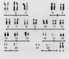 genes and chromosomes fundamentals msd manual consumer version
