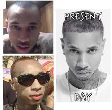 tyga hair transplant anyone here going bald or hairline receding check hook boxing