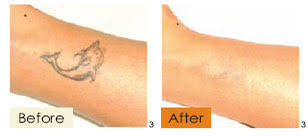 laser hair removal in tokyo japan tattoo removal ipl laser mole